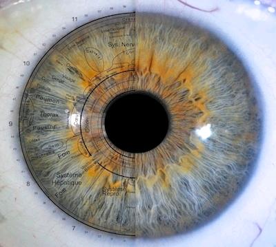 Iris yeux traitement iridologie